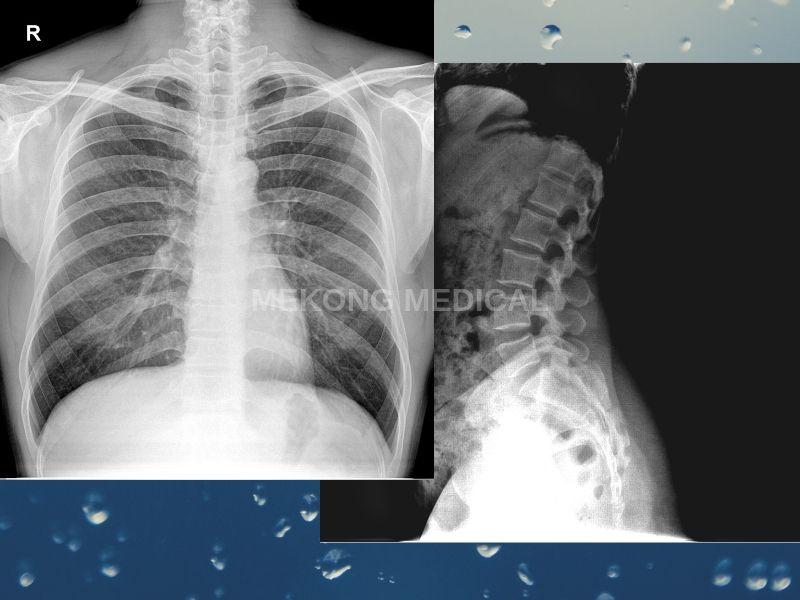 Hai cách để chụp X quang khi đi khám ngoại viện
