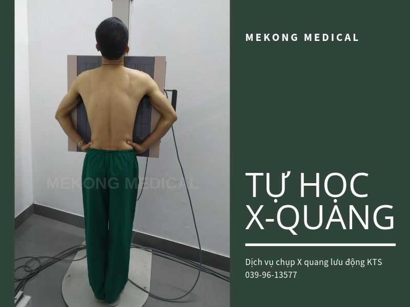 kỹ thuật chụp x quang ngực thẳng
