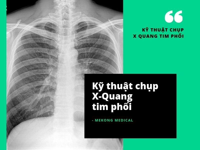 Kỹ thuật chụp X-Quang tim phổi
