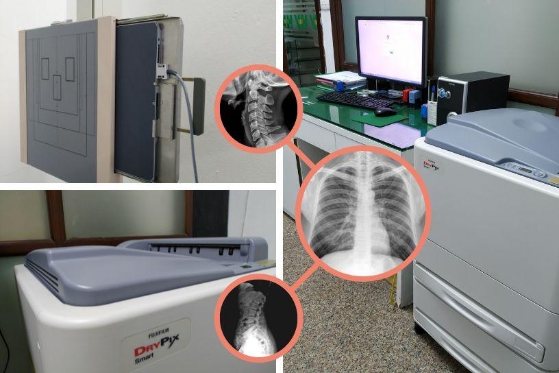 Hướng dẫn nâng cấp máy X-Quang kỹ thuật số DR