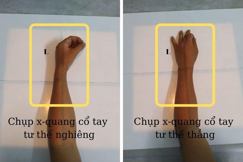 hướng dẫn chụp x-quang cổ tay
