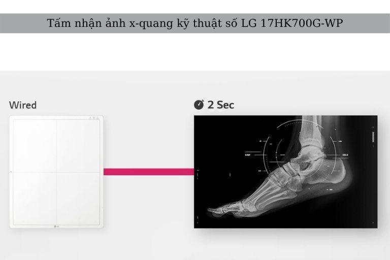 Tấm nhận ảnh DR LG 17HK700G-WP